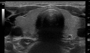 Centre de Radiologie de Poissy - Radiographie numérique Scanner IRM