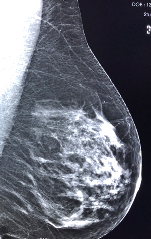 Centre de Radiologie de Poissy - Radiographie numérique Mammographie
